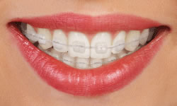 clear-invisalign-Springfield-New-Jersey