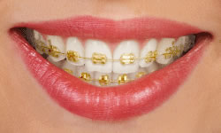 gold-invisalign-Springfield-New-Jersey