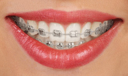 traditional-metal-braces-Springfield-New-Jersey
